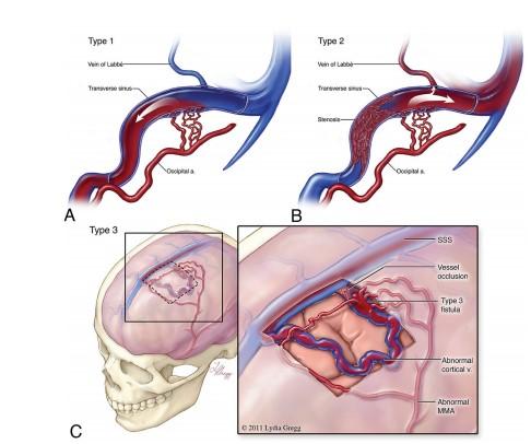 Discussão de tratamento de Fístula Arteriovenosa Dural grau I